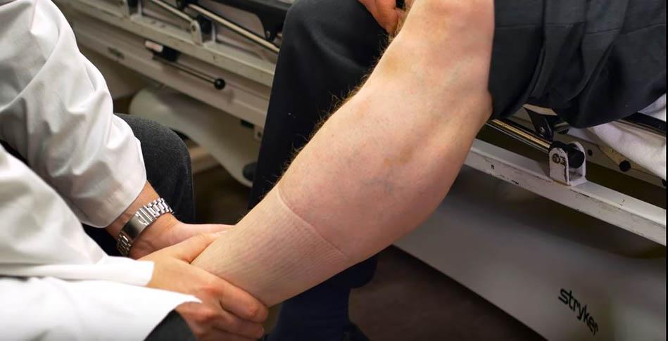 Venous thromboembolism leg exam 1